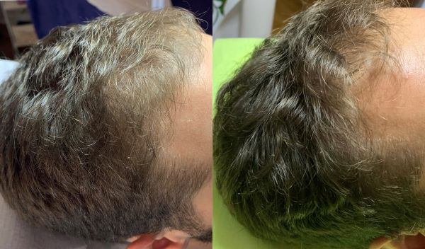 prp kose pre i posle